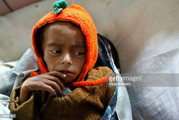 A oneandahalfyearold boy weighing only 4 kilos and suffering from chronic malnutrition lies in the Action Contre Le Faim malnutrition ward inside the...