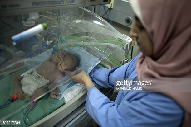 Onedayold Palestinian conjoined twin boys lie in an incubator at the nursery on November 23 2016 at alShifa Hospital in Gaza City / AFP / MAHMUD HAMS