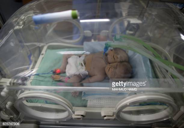 TOPSHOT Onedayold Palestinian conjoined twin boys lie in an incubator at the nursery on November 23 2016 at alShifa Hospital in Gaza City / AFP /...