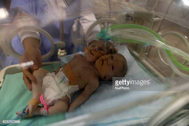 Onedayold Palestinian conjoined twin boys lie in an incubator at the nursery on November 23 2016 at alShifa Hospital in Gaza City