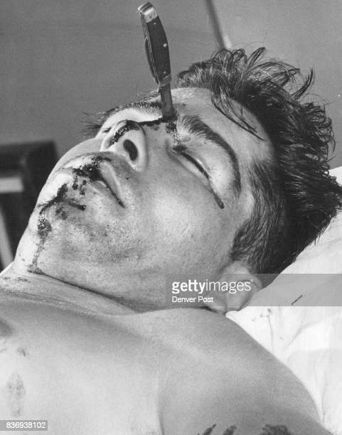 Only chance spared the life of Paul Cordova of Denver Colorado when in the heat of a trifling argument a companion hurled his pocket knife across the...