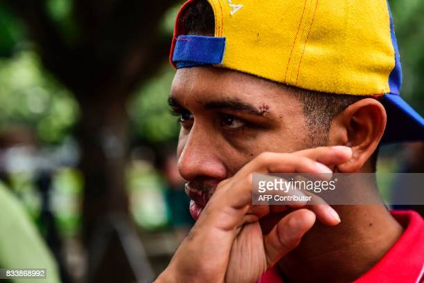 Opposition activist and violinist Wuilly Arteaga gestures before a press conference at Altamira square in Caracas on August 17 2017 The young...