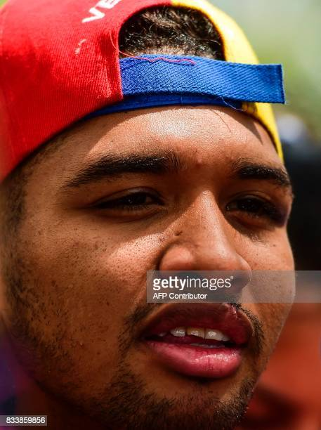 Opposition activist and violinist Wuilly Arteaga speaks during a press conference at Altamira square in Caracas on August 17 2017 The young violinist...