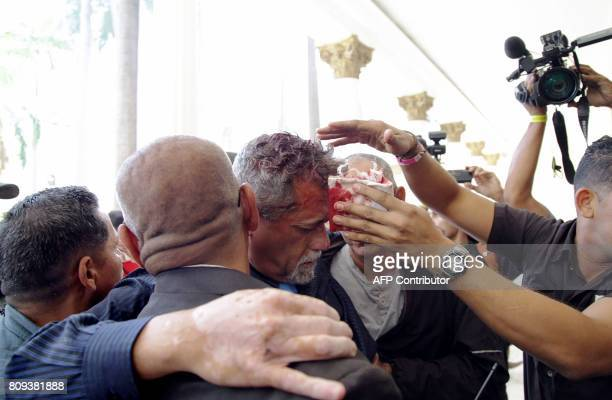 TOPSHOT Opposition deputy Americo De Grazia is assisted after being injured by supporters of Venezuelan President Nicolas Maduro who stormed into the...