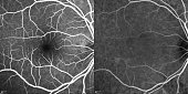 Optical Coherence Tomography . ( OCT )