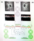 Optical coherence tomography showing the optical nerve of a patient who is showing a risk of glaucoma