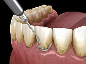 Oral hygiene: Scaling and root planing (conventional periodontal therapy). Medically accurate 3D illustration of human teeth treatment