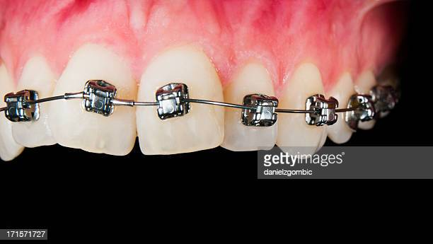 Orthodontic Treatment With Gingival Recesion