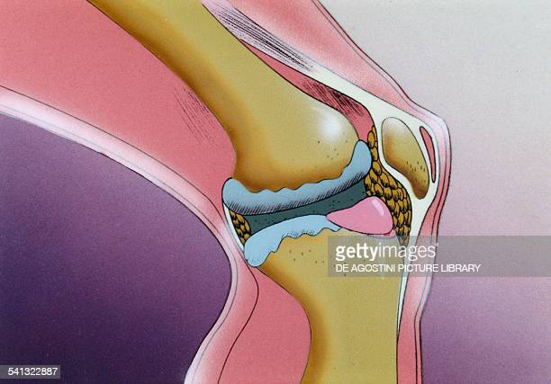 Osteoarthritis a degenerative disease of articular cartilage drawing