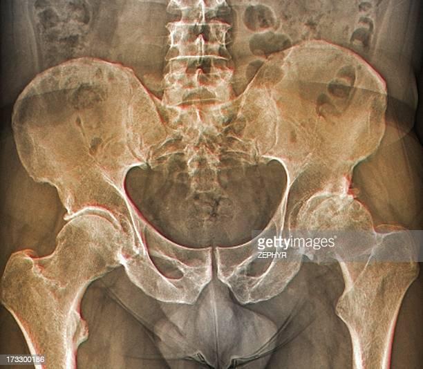 Osteoarthritis of the hip, X-ray