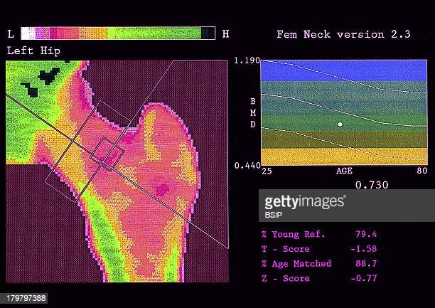 Osteopenia Bone Mineral Density Test Femoral Neck This Methods Measures The Subjects Bone Mineral Density Bmd And Can Detect Osteopenia A Decrease In...