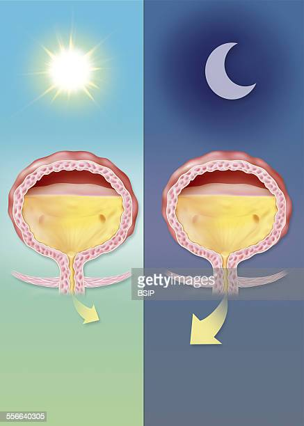 Overactive Bladder Illustration of nocturia the heightened need to urinate during the night