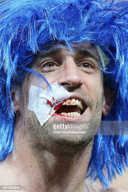 Pablo Zabaleta of Argentina celebrates with a bandage on his face after defeating the Netherlands in a penalty shootout during the 2014 FIFA World...