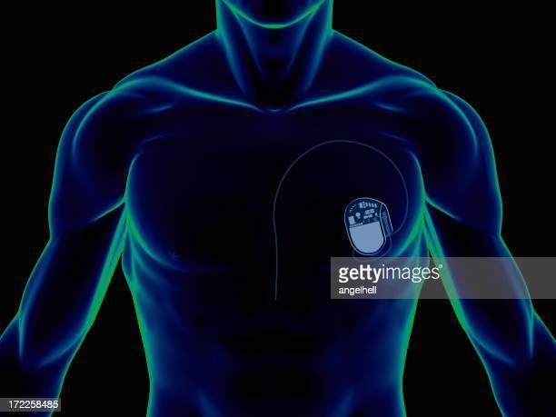 Herzschrittmacher auf der Brust