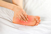 Pain in the foot sole. Bad leg. The focus of pain is marked in red. Close up.