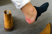 Painful Heel wound on mans feet caused by new shoes. Cracked terrible blister on human heel with new brown fashion shoes laying around. Wet bloody painful skin on man foot with plaster
