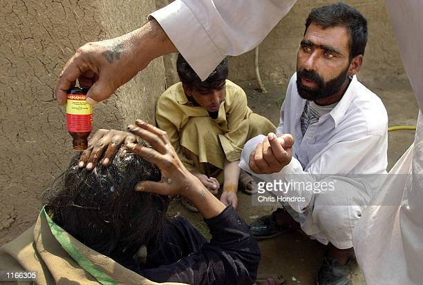 Pakistani man's hair is deloused at the Darul Shifa drugtreatment center October 4 2001 in Peshawar Pakistan The center is run by the Dost Foundation...