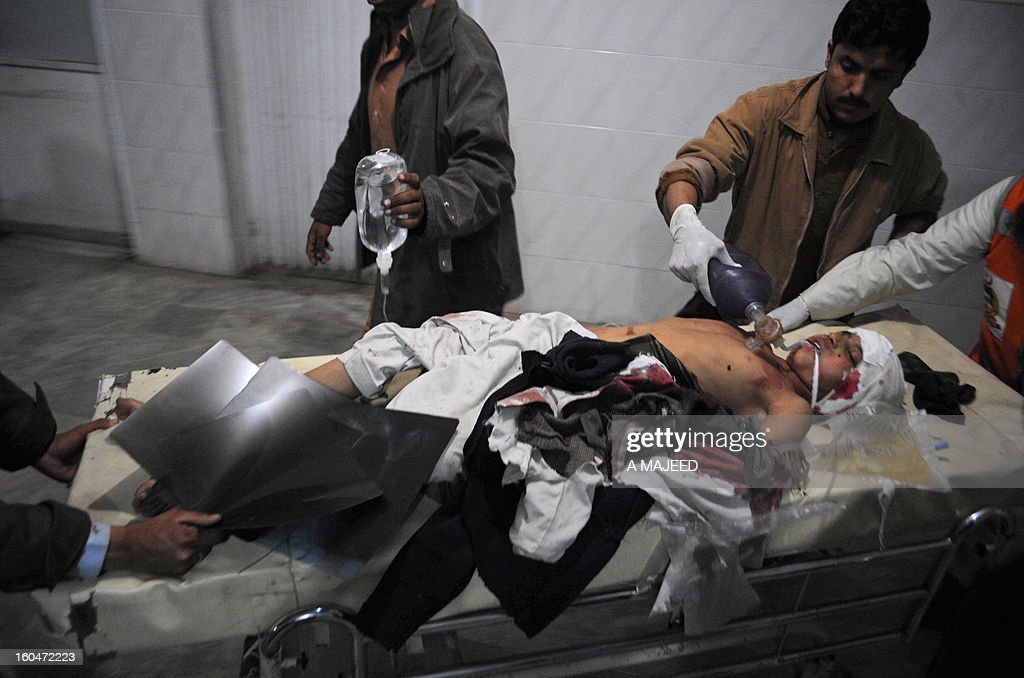Pakistani medical workers tend to an injured bomb blast victim at a hospital in Peshawar on February 1, 2013, after an explosion outside a Shiite Muslim mosque in Hangu. A suicide bomber targeted a Shiite Muslim mosque in northwest Pakistan on Friday, killing 21 people and wounding up to 50 as worshippers poured out of weekly prayers, officials said. AFP PHOTO/A MAJEED