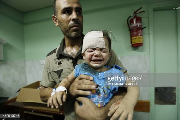 A Palestinian child wounded in an Israeli strike on a compound housing a UN school in Jabalia refugee camp in the northern Gaza Strip receives...