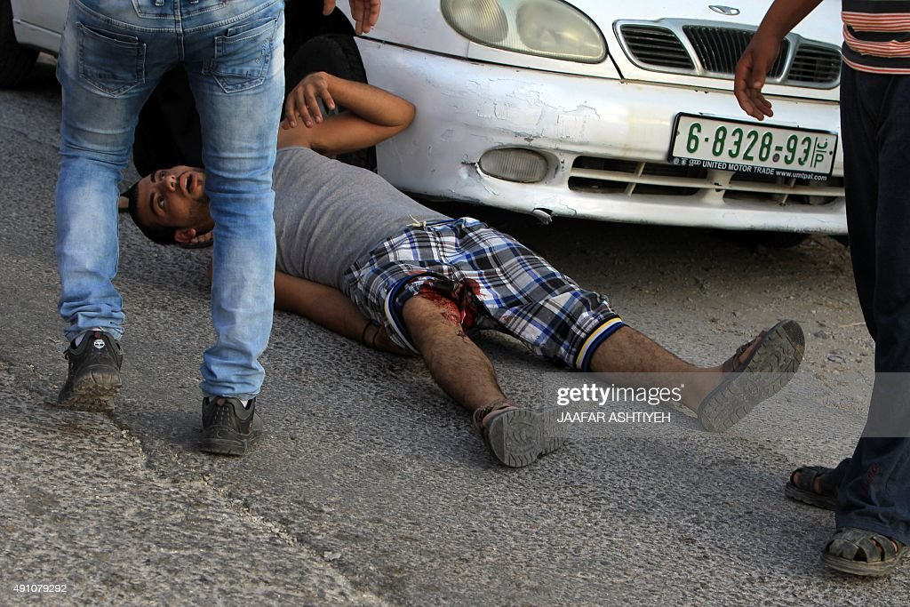 A Palestinian demonstrator lays on his back after being reportedly shot in the leg by Israeli soldiers in a street east of the West Bank city of...