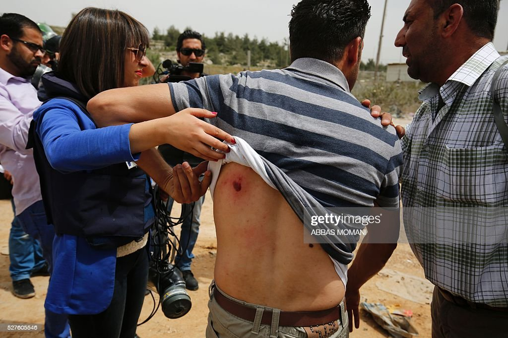 A Palestinian journalist shows his wounds caused by a stun grenade fired by Israeli forces during a demonstration in support of Palestinian journalists on the occasion of the World Press Freedom day outside the compound of the Israeli-run Ofer prison near Betunia, in the occupied West Bank, on May 3, 2016 / AFP / ABBAS