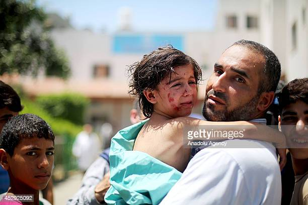 Palestinian kid Sehed Saad Abu Hasna wounded by Israeli strikes on a refugee camp in Jebalia taken to Kamal Adwan hospital in Beit Lahia Gaza on July...