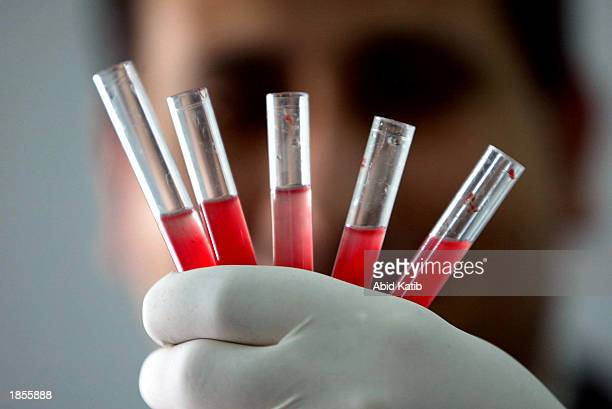Palestinian laboratory worker checks blood units donated by members of the Palestinian public at Shifa hospital in Gaza City in the Gaza Strip on...