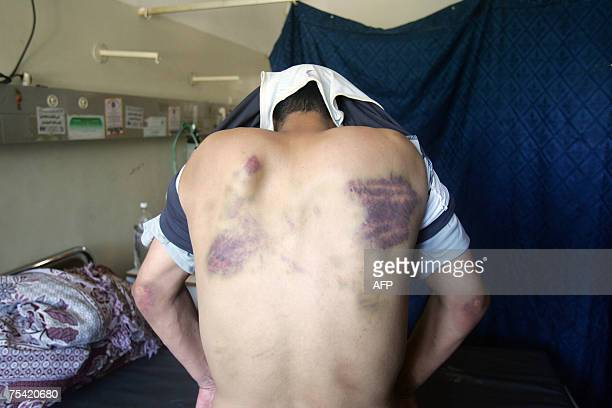 Palestinian man identified only as Mohammed shows the livid bruises and welts on his back in a hospital in Gaza City 12 July 2007 The bruises on...