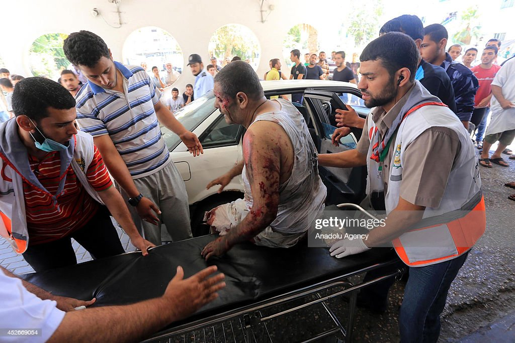 Palestinian man wounded in an Israeli attack taken to Al Shifa Hospital in Gaza City Gaza on July 25 2014 The total number of Palestinians killed in...