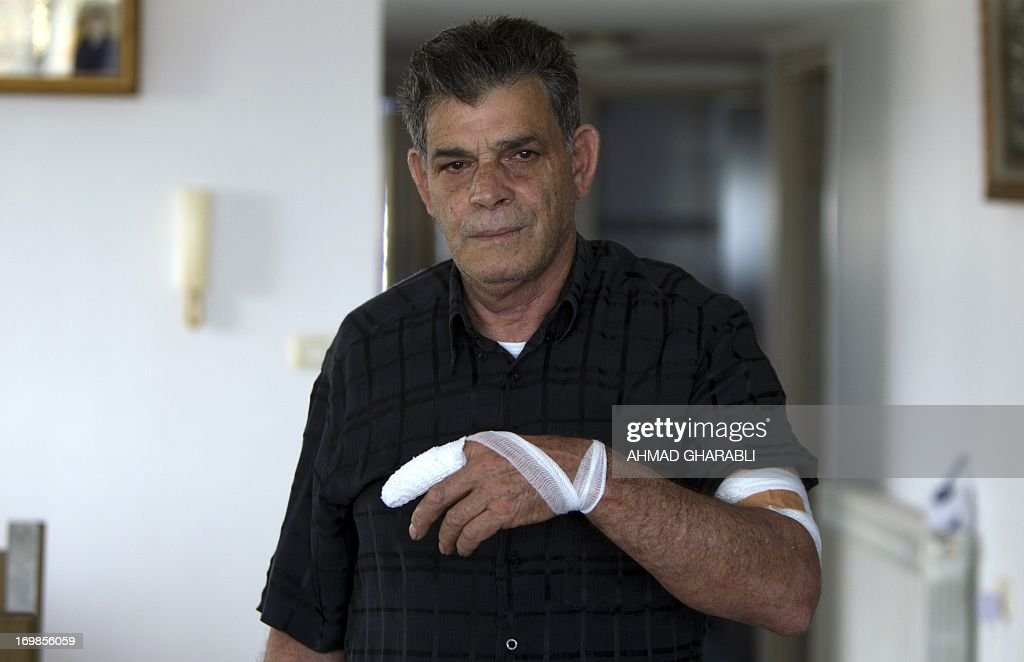Palestinian taxi driver Naim Alayan shows off his bandaged finger and arm as he stands in his home in Beit Safafa in southern Jerusalem, on June 3, 2013, after he said he was stabbed by two young Israelis he was taxing around Jerusalem. According to Alayan, the two asked to be driven to the city center, and on the way instructed the driver to go into a side alley while they allgedly put knife to his throat. During the struggle, the driver was injured.
