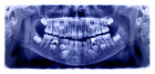 A panoramic radiograph is a panoramic scanning dental X-ray of the upper and lower jaw. This is a focal plane tomography shows the maxilla and mandible of a child aged seven years.