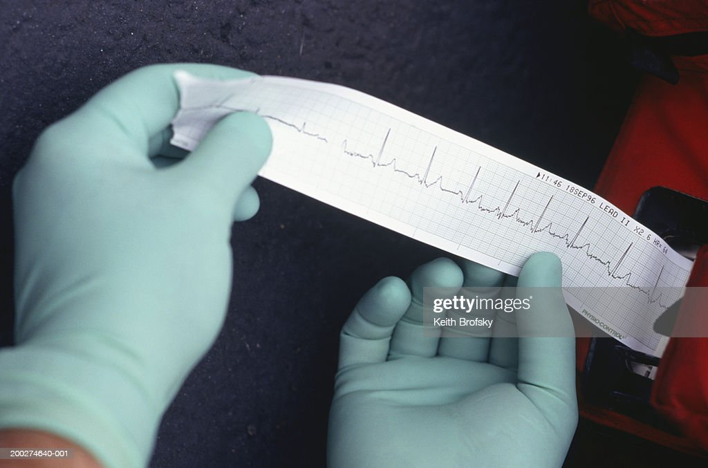 Paramedic wearing rubber gloves holding medical readout, close-up of hands : Stock Photo