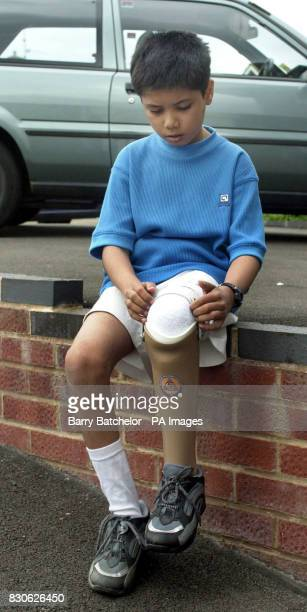 Parth Joshi whose leg was crushed in the Indian earthquake earlier this year puts on his new artificial leg in Tuffley Gloucester after a local...