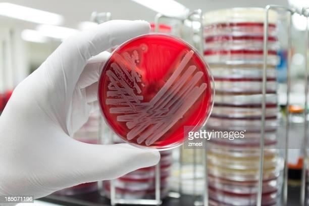 Unbedenklich Bakterien