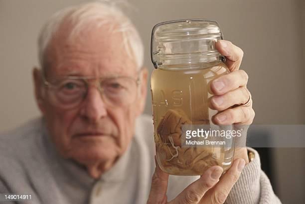 Pathologist Thomas Harvey holds the brain of theoretical physicist Albert Einstein in a jar Kansas 1994 Harvey performed the autopsy on Einstein in...