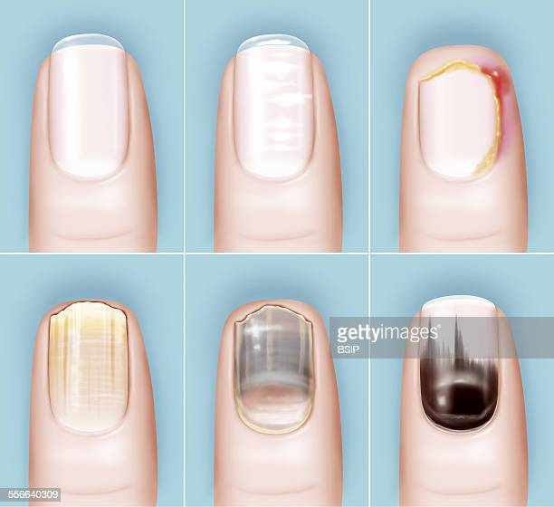Pathology Of The Nail Drawing Illustration of the various nail pathologies From left to right top to bottom healthy nail ridged nail due to the nail...