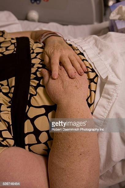 A patient 54 with lymphedema in the right arm in a hospital in Texas The lymphedema is caused by removal of lymph nodes during a mastectomy on her...