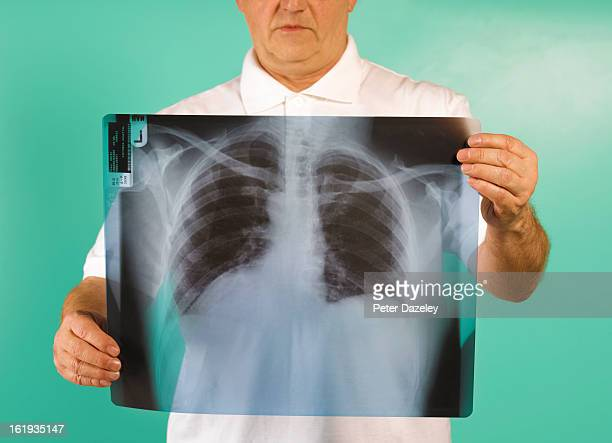 Patient examining x-ray of lungs