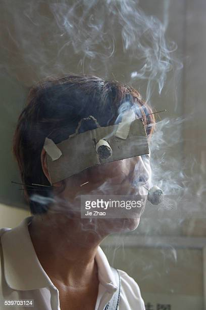 A patient receives a traditional Chinese medical treatment with needles and ignited dry moxa leaves on her face to cure facial paralysis at a...