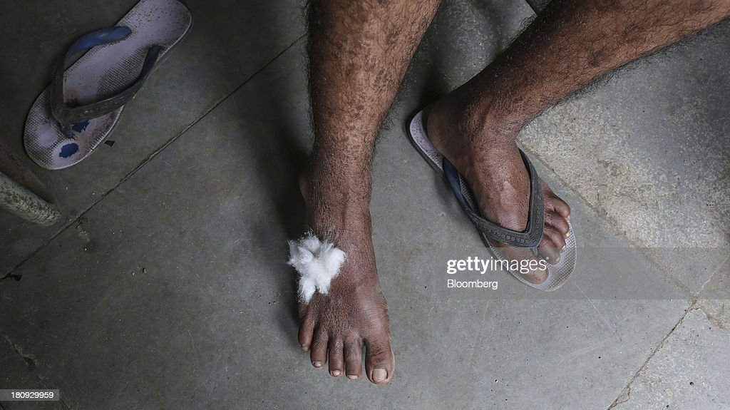 A patient sits after a skin smear test at the Bombay Leprosy Project (BLP) referral center in Mumbai, India, on Tuesday, Sept. 10, 2013. While leprosy, described in Indian texts from the 6th century BC, has been cleared from the developed world, its regaining ground in India, which has become the biggest source of cases imported into the U.K. and Australia. Photographer: Dhiraj Singh/Bloomberg via Getty Images