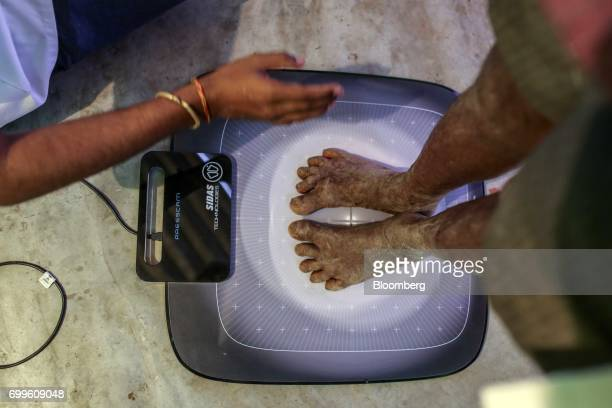 A patient stands with bare feet on a dynamic pressure measurement device at a Jain Institute of Vascular Sciences mobile clinic in Pancharala on the...