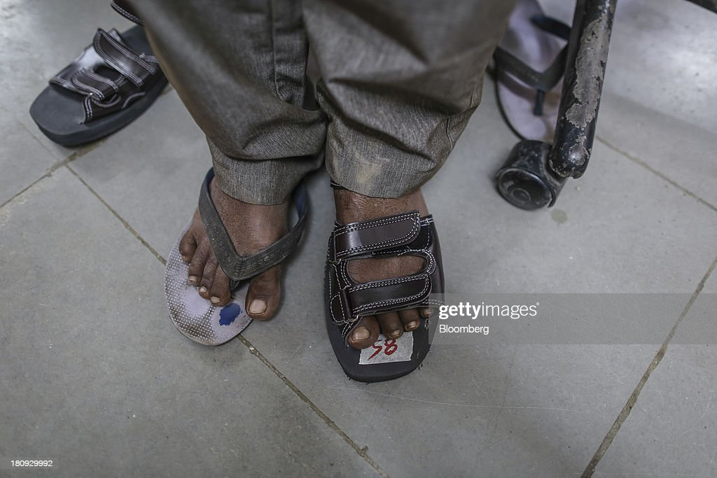 A patient tries on a micro cellular rubber based sandal, right, at the Bombay Leprosy Project (BLP) referral center in Mumbai, India, on Tuesday, Sept. 10, 2013. While leprosy, described in Indian texts from the 6th century BC, has been cleared from the developed world, its regaining ground in India, which has become the biggest source of cases imported into the U.K. and Australia. Photographer: Dhiraj Singh/Bloomberg via Getty Images