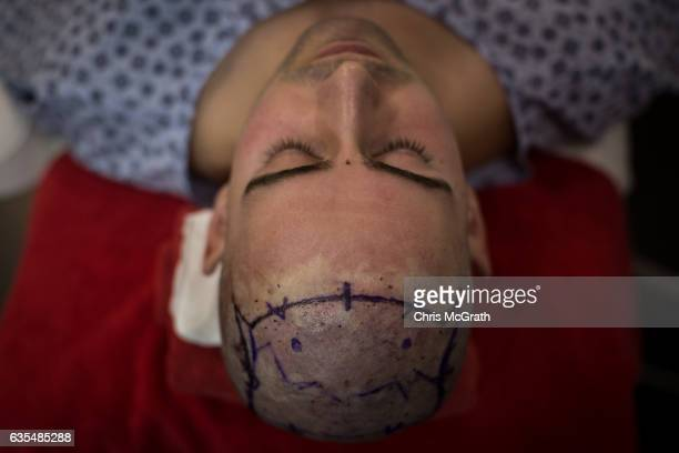 A patient undergoes a hair transplant procedure at the luxury Esteworld Clinic on February 15 2017 in Istanbul Turkey Esteworld clinic is one of many...