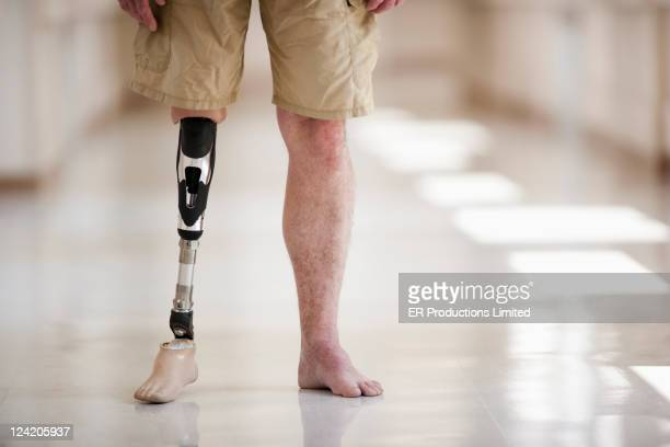 Patient with artificial leg standing in hospital corridor