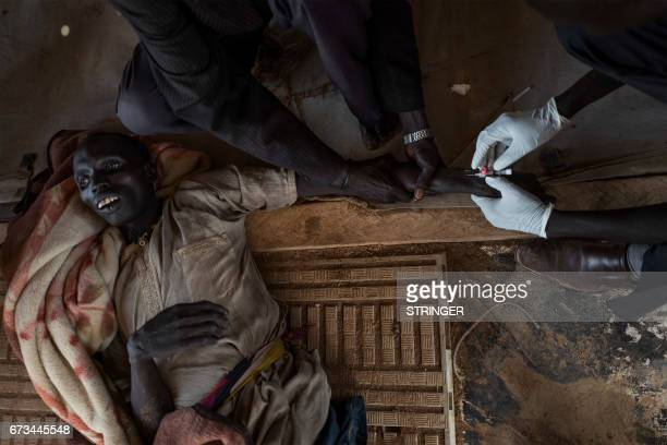 TOPSHOT A patient with cholera is treated moments before his death at the temporary specialized hospital in Mingkaman a camp for the Internally...