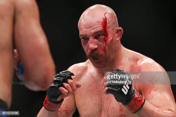 Patrick Cummins bleeds from a cut during his UFC Fight Night light heavyweight bout against Gian Villante at the Nassau Veterans Memorial Coliseum on...