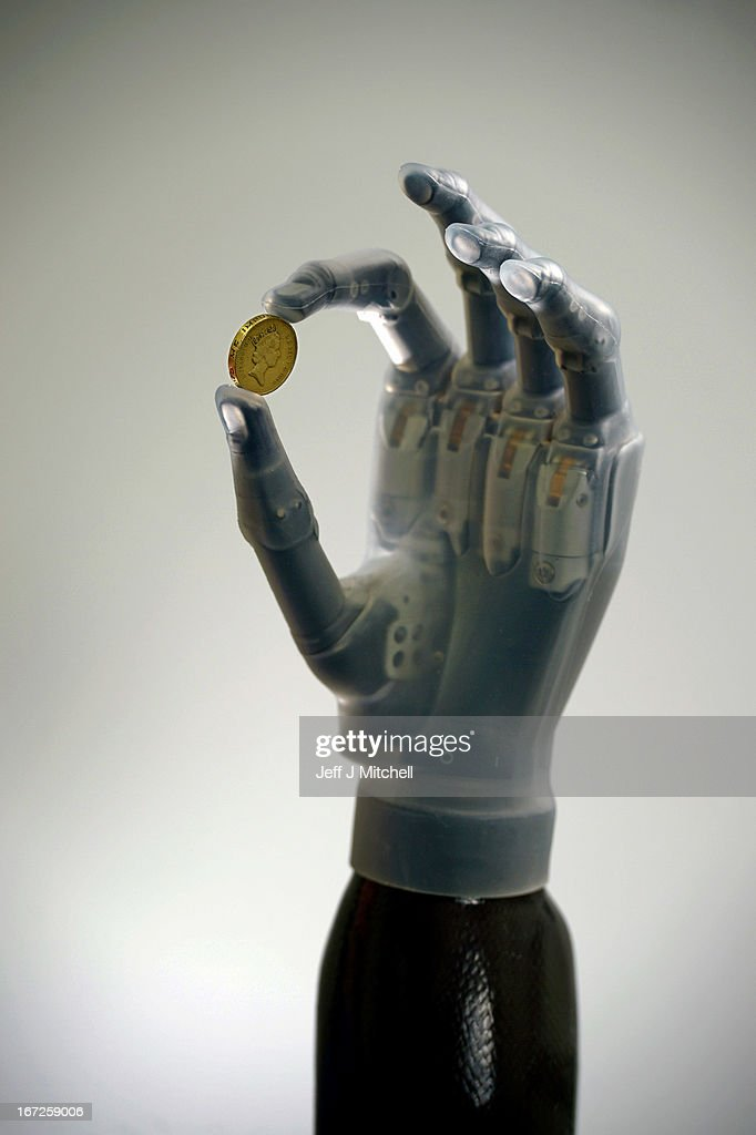Patrick Kane is fitted with the new Touch Bionics prosthetic hand on April 23 2013 in Livingston Scotland The new ilimb ultra revolution has a...