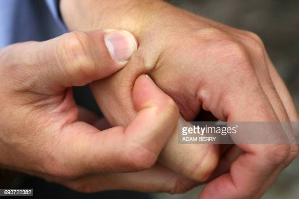 Patrick Kramer of the company Digiwell shows his microchip implant to a visitor at a press preview of the Wearit festival in Berlin on June 8 2017...