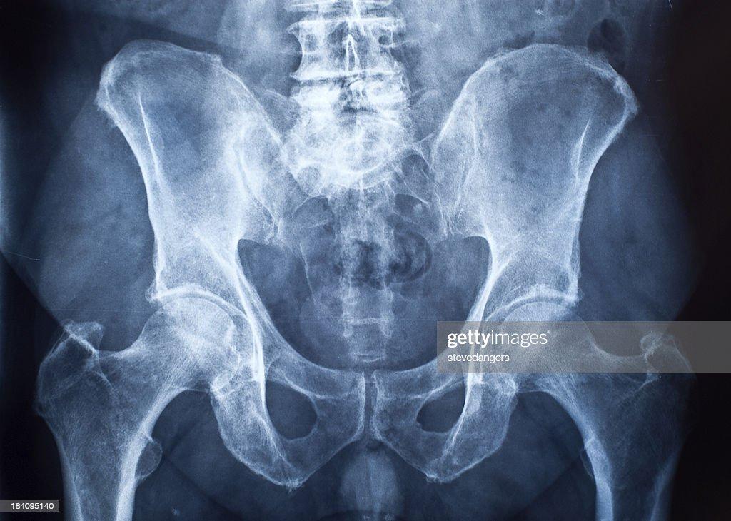 Radiografia della pelvi : Foto stock