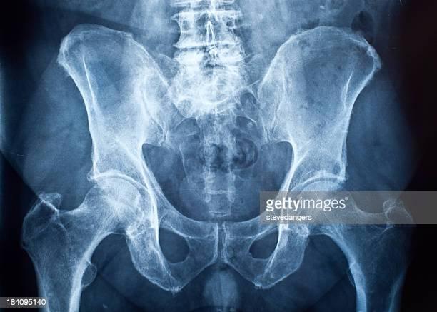 Knochen im Beckenbereich x-ray
